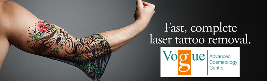 Tattoo Removal Center Bangalore