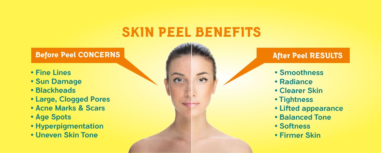 Chemical Peel in Malleswaram